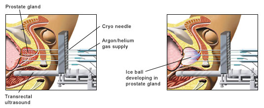 Diagrams illustrating the cryotherapy procedure