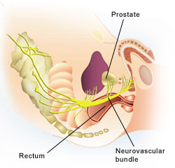 orgasm after radical prostatectomy